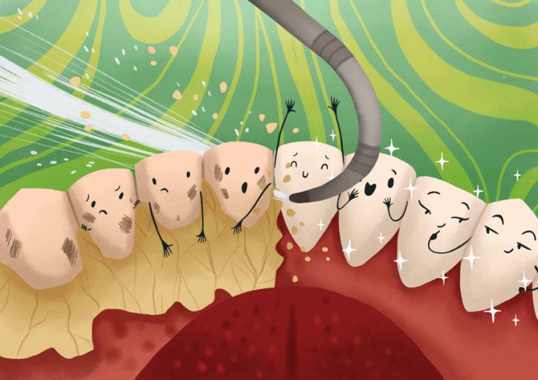 detartrasi - ablazione tartaro - pulizia dentale