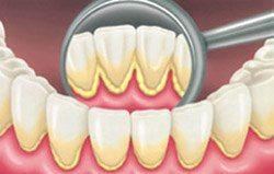 placca dentale - Tartaro sui Denti