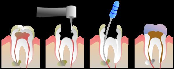 Devitalizzazione - Cura Canalare - Endodonzia