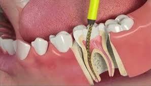 Devitalizzazione dente - Cura Canalare