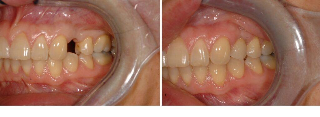 Impianti Dentali - Prima e Dopo