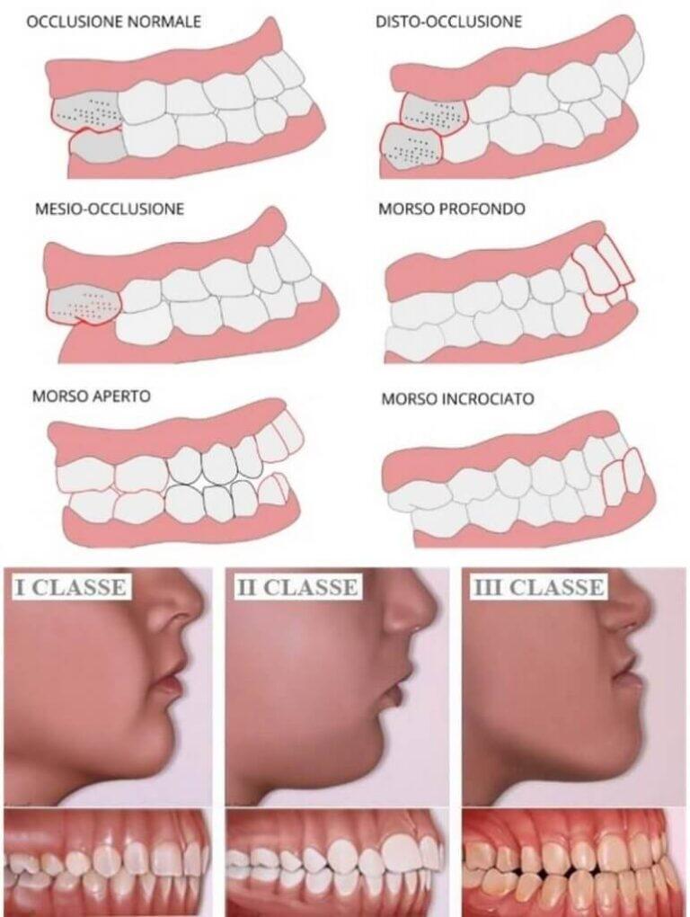 Malocclusione Dentale - Diverse Classi - Tipi di malocclusione
