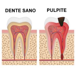 Pulpite Dentale - Dente che Pulsa