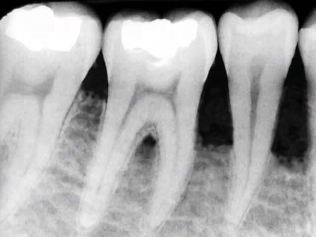 Radiografia Tasche Gengivali