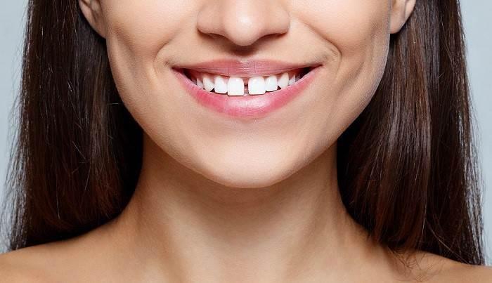 Sorriso con Diastema Dentale