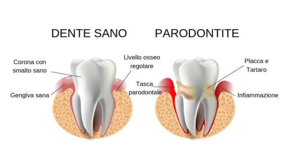 Differenza gengiva sana e parodontite - piorrea - tasche gengivali