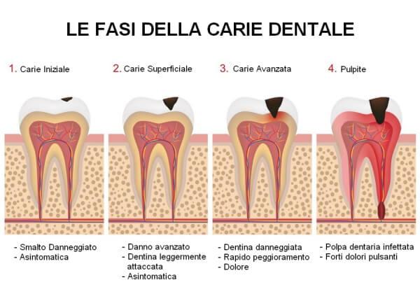 fasi della carie dentale